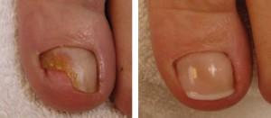 voor_na_behandeling_nagels[1]